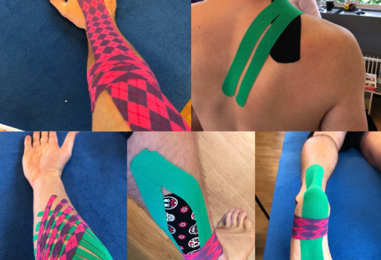 Images showing kinesology taping on body to drain lymphnoids